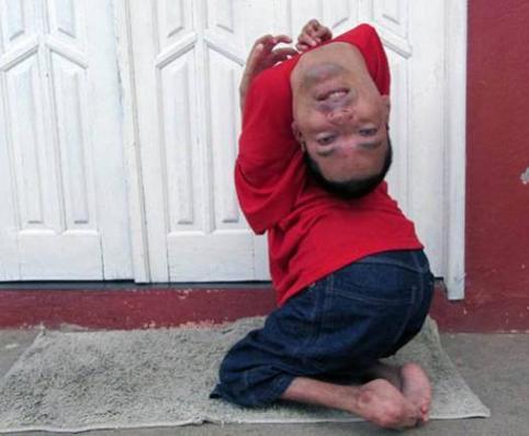 Төрөлхийн хүзүүний булгаралттай ня-бо залуу